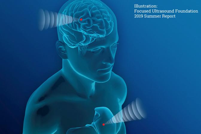 ultrasound neurotech HiTMaT